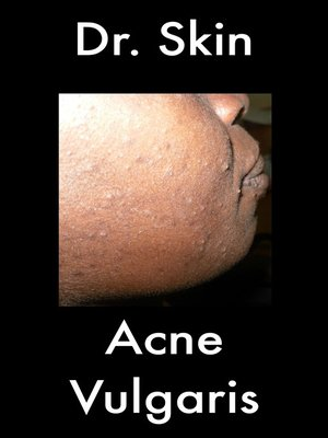 cover image of Acne Vulgaris