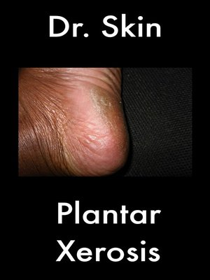 cover image of Plantar Xerosis