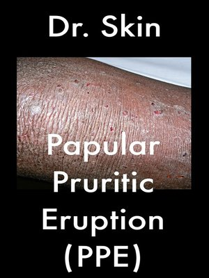 cover image of Papular Pruritic Eruption