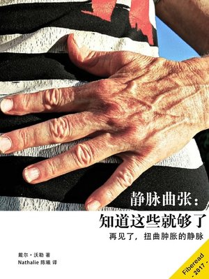 cover image of 静脉曲张