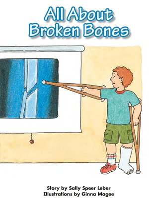 cover image of All About Broken Bones