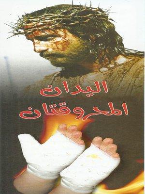 cover image of اليدان المحروقتان