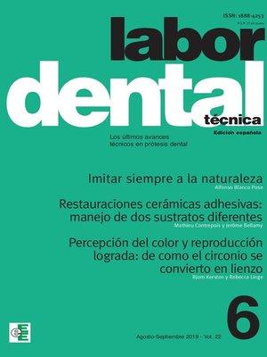 cover image of Labor Dental Técnica Volume22 Ago-Sep 2019 nº6