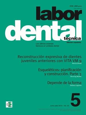 cover image of Labor Dental Técnica Volume22 Ene-Feb 2019 nº5