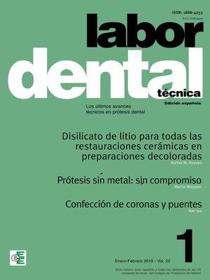 cover image of Labor Dental Técnica Volume22 Ene-Feb 2019 nº1