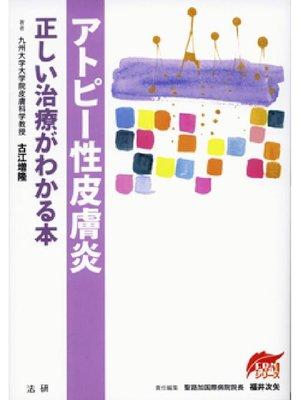 cover image of アトピー性皮膚炎 正しい治療がわかる本