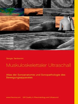 cover image of Muskuloskelettaler Ultraschall