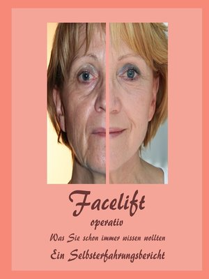 cover image of Facelift operativ