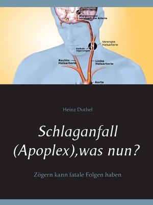 cover image of Schlaganfall (Apoplex), was nun?