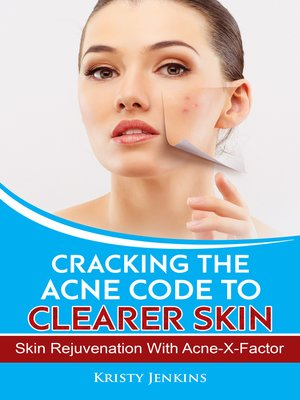 cover image of Cracking the Acne Code to Clearer Skin