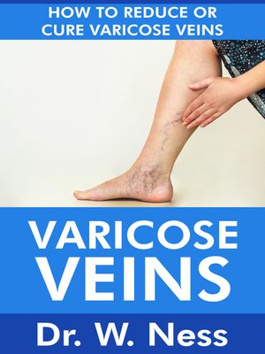 cover image of Varicose Veins