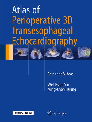 cover image of Atlas of Perioperative 3D Transesophageal Echocardiography