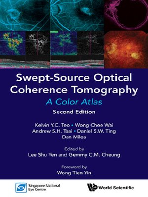 cover image of Swept-Source Optical Coherence Tomography