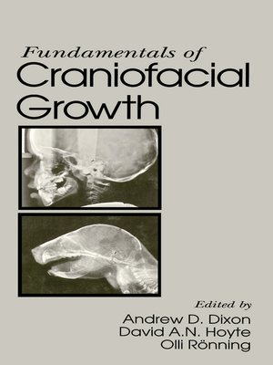 cover image of Fundamentals of Craniofacial Growth