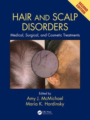 cover image of Hair and Scalp Disorders