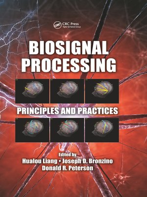 cover image of Biosignal Processing