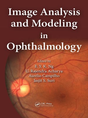 cover image of Image Analysis and Modeling in Ophthalmology