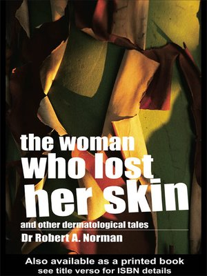 cover image of The Woman Who Lost Her Skin