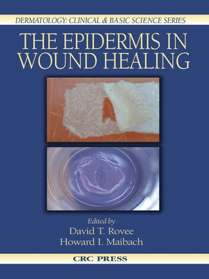 cover image of The Epidermis in Wound Healing