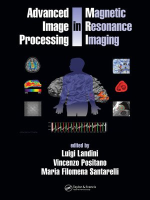 cover image of Advanced Image Processing in Magnetic Resonance Imaging