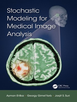 cover image of Stochastic Modeling for Medical Image Analysis