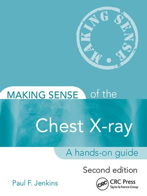 cover image of Making Sense of the Chest X-ray
