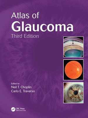 cover image of Atlas of Glaucoma