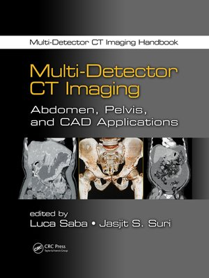 cover image of Multi-Detector CT Imaging