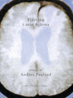 cover image of Fjärilen i min hjärna